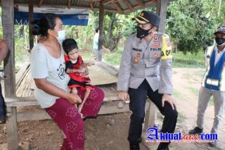 Alami Gangguan Kelumpuhan Seorang Anak Dapat Bantuan Sosial dari Kapaolres Buleleng