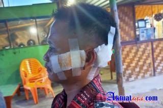 Kepala Obaza Alami Luka Berat, Dianiaya Preman, Polisi Diminta Profesional